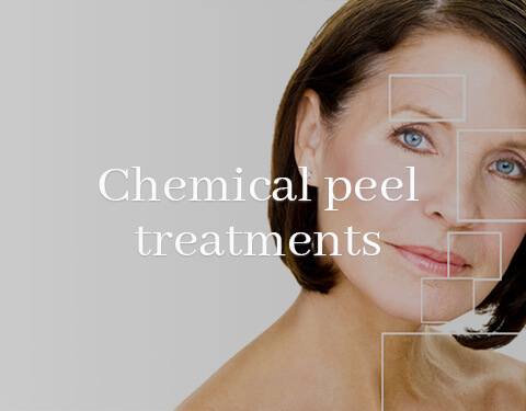 Chemical Peel Treatments Düsseldorf Koebe Klinik